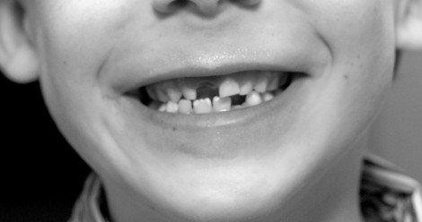 Denti da Latte e permanenti